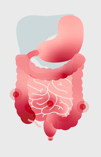 Quali sono le cause della malattia di Crohn?